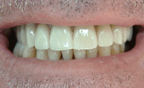 Happy patient with new dental implant teeth