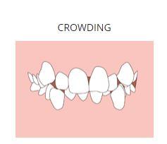 crowding.JPG