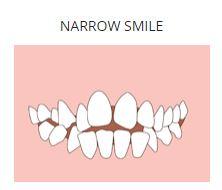 narrow smile.JPG