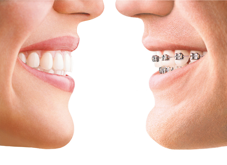 Invisalign (left) compared to traditional orthodontic bands (right).