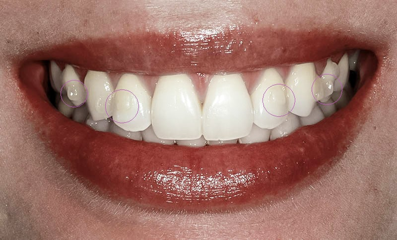White composite buttons which are placed on your teeth to help move your teeth into the desired positon.