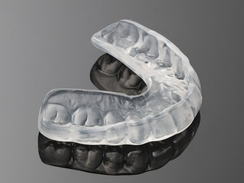 Custom fitted - Custom dental mouthguards, as the name suggests, are mouthguards made by a dentist or a dental technician to fit a person's mouth exactly.Due to their close fit, they provide the best protection, comfort and shock absorption. While these are the most expensive option, an injury to the teeth or jaw will be a lot more expensive.Custom-fitted mouthguards are recommended by Cambridge City Dental whether you play sport for fun or at any competition level.