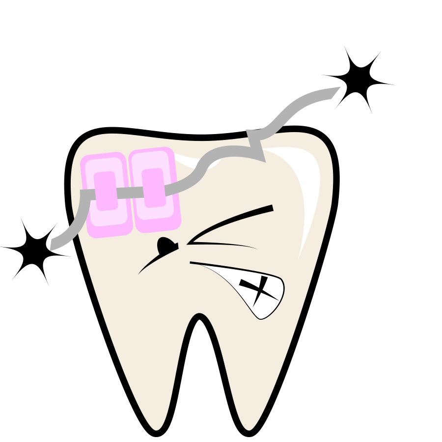 braces-retainers.png