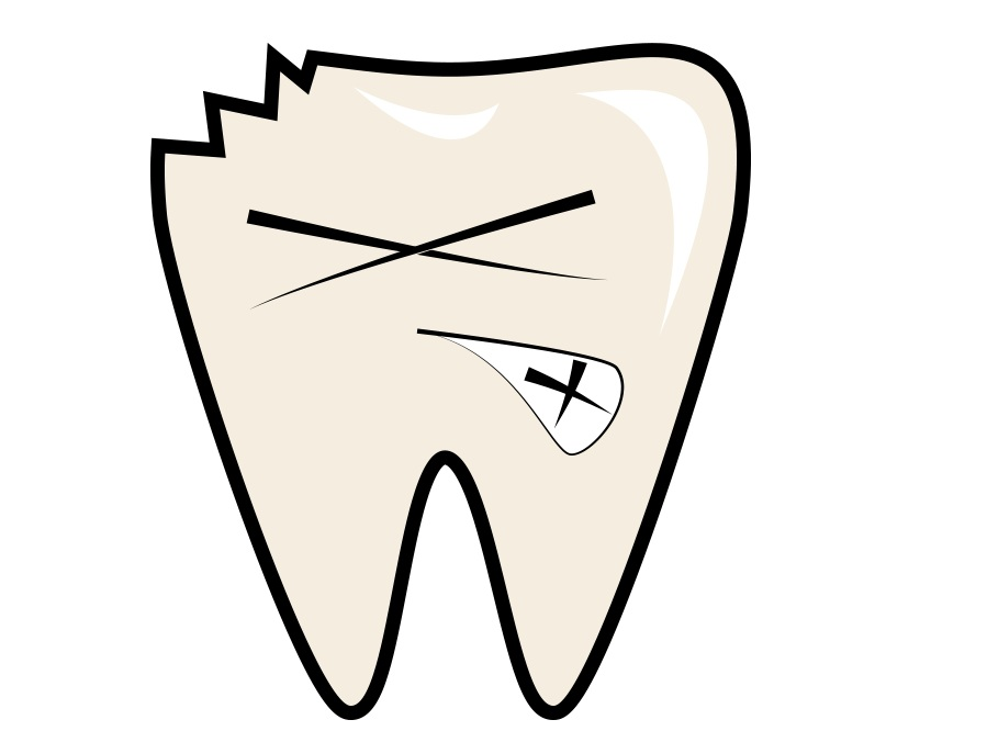 chipped-tooth.jpg