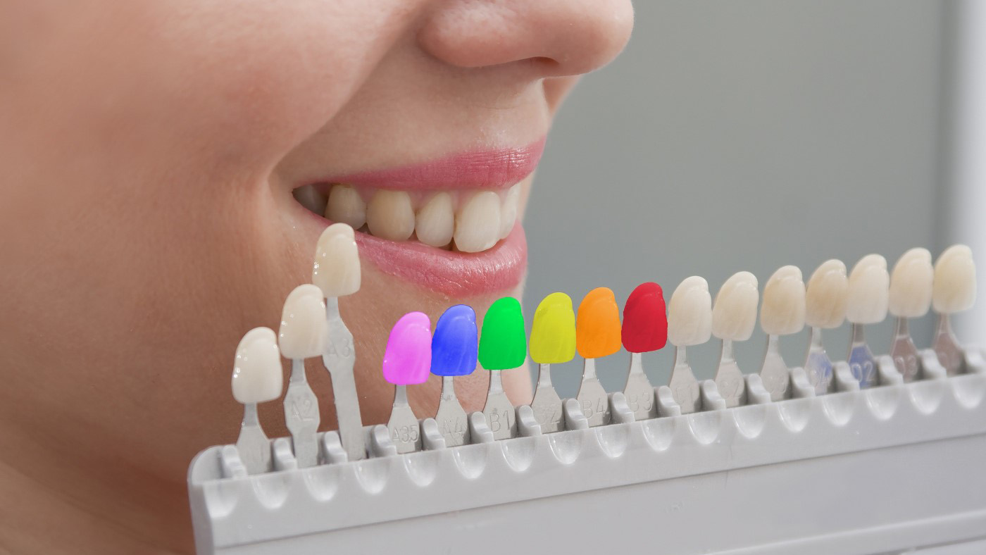 Get composite porcelain veneers in a wide range of colours for a sensational smile