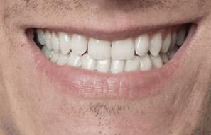 implant-dentures-3.jpg