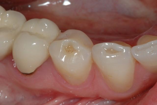 teeth-wear-perth-dentist.jpg