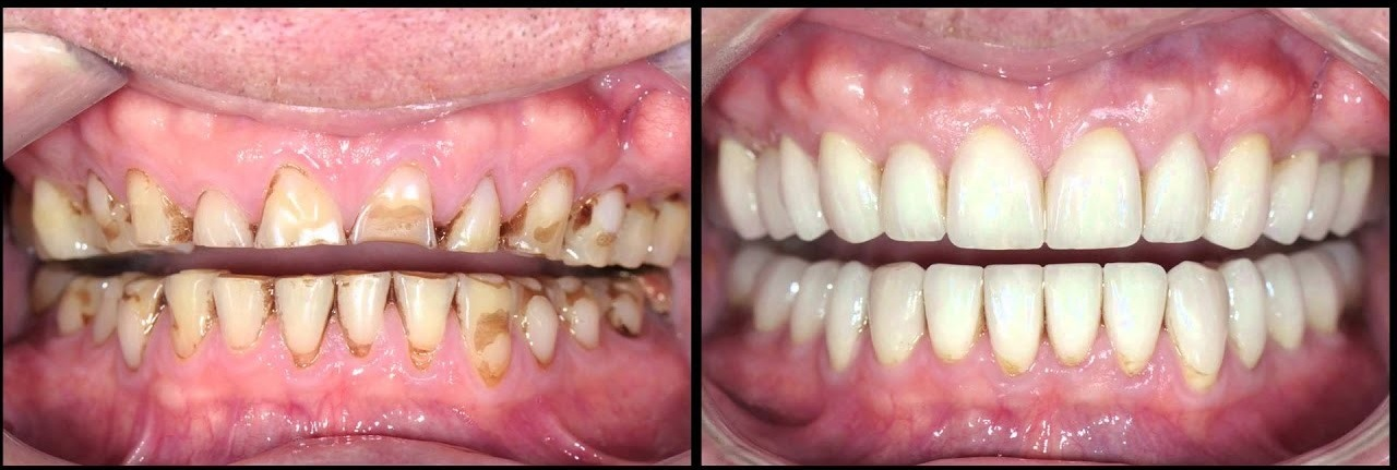 The Perth dentist at Cambridge City Dental can repair damaged or decayed teeth.