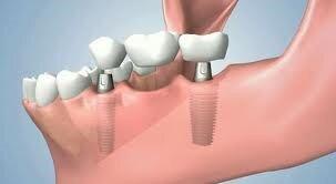 implant supported bridge.