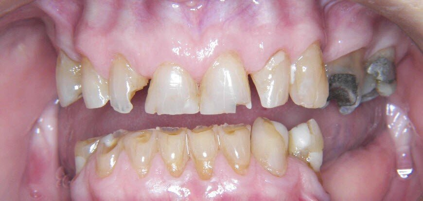 Wear and tear on front teeth of a patient missing rear teeth