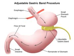 Gastric Band weight loss hypnosis Chiswick and Barnes, west london