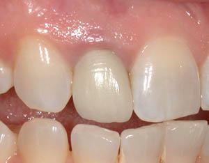 before treatment: old crown -tooth had to be removed as root underneath was fractured.