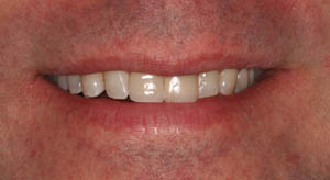 Porcelain veneer and crown on dental implant side by side