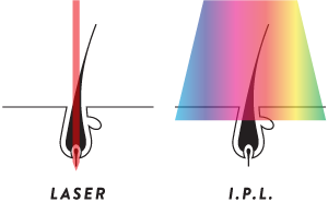 IPL vs Laser - Why laser is better for hair removal