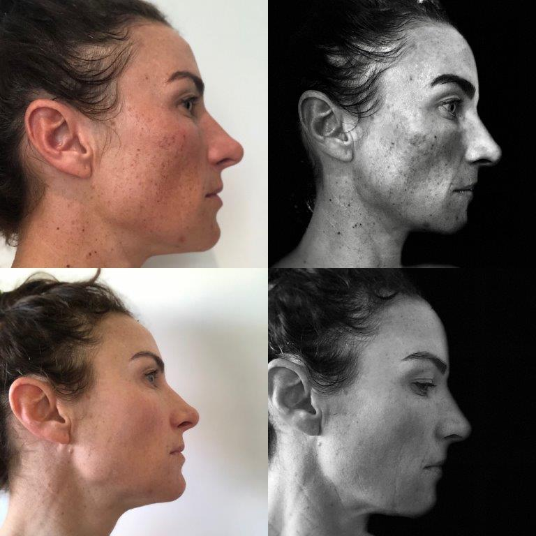 Laser pigmentation removal - before and after