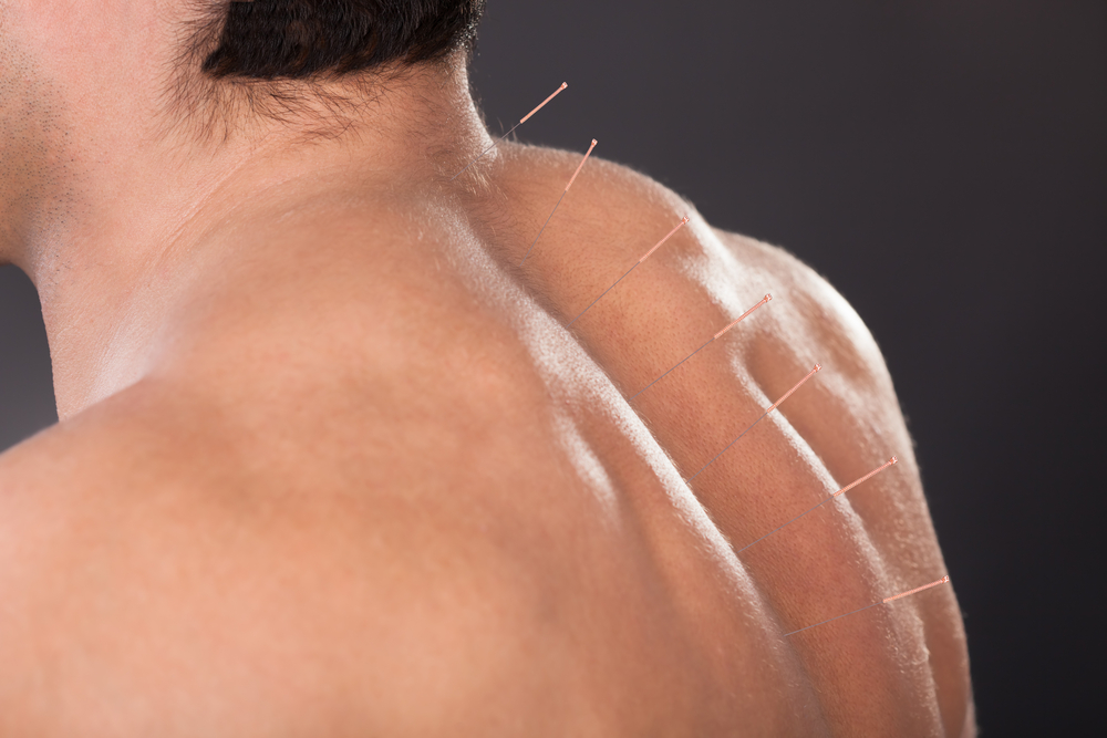 Okotoks acupuncture
