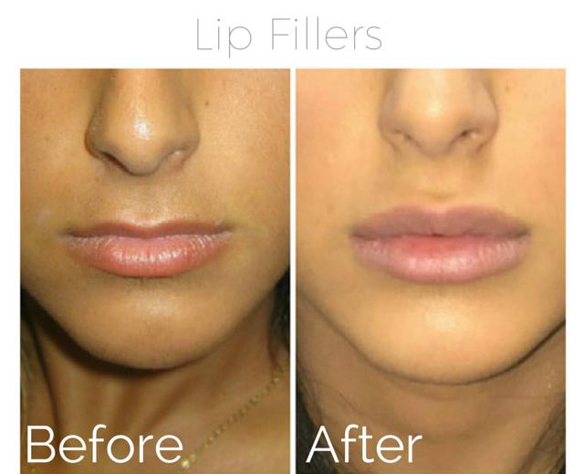 Filler - lips 3.png