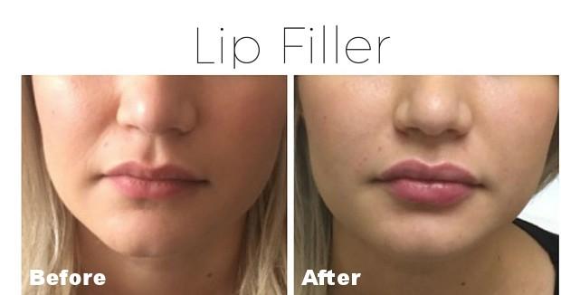 Filler - lips 4.jpg