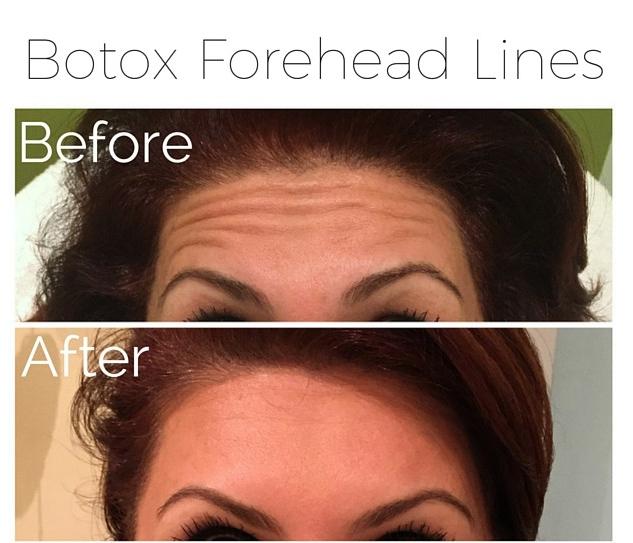 Botox - forehead lines.jpg