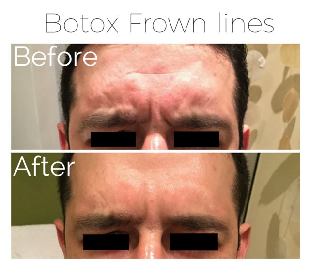 Botox - Frown lines 3.png