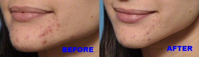 Acne-Treatment- microneedling - before after.jpg