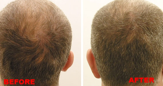 images - hair growth - 2.jpg