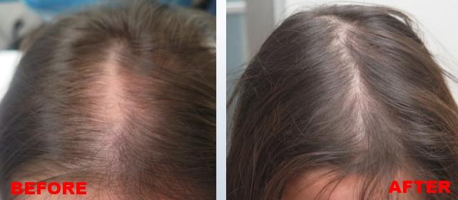images - hair growth - 1.jpg
