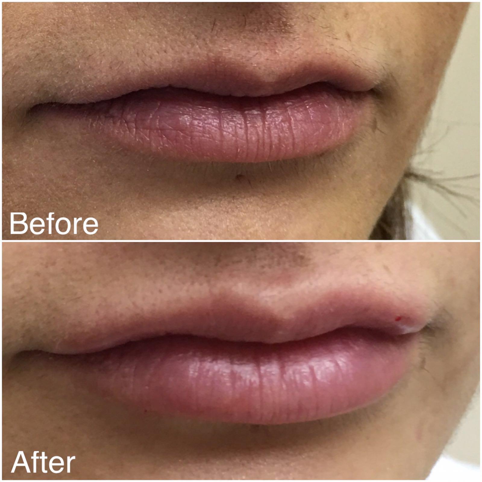 FIller - lip 2.jpg