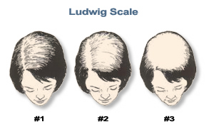 Female-Hair-Loss-101-Ludwig-image.jpg
