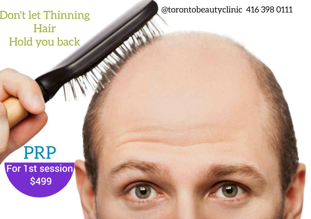 50% OFF PRP$499 ONLY* - @TorontoBeautyClinic 416(398) 0111