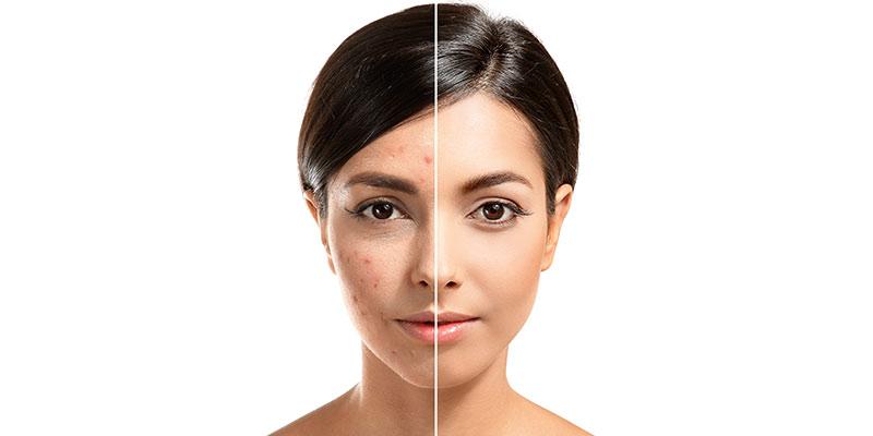 TBC_laser_acne_scars.jpg