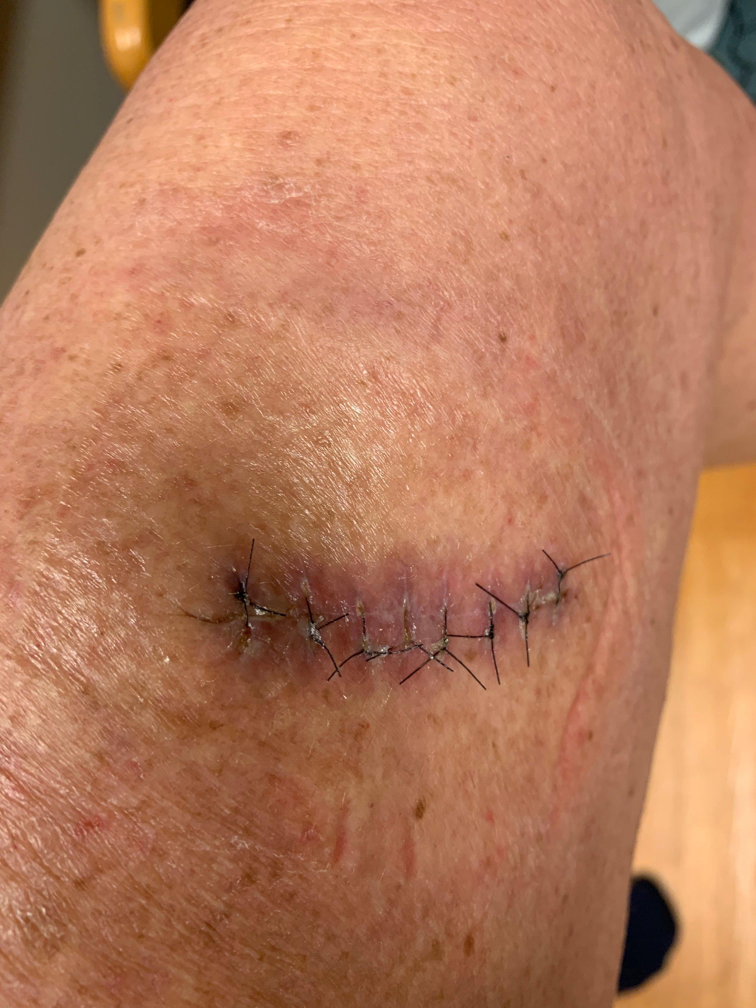 Stitched.JPG