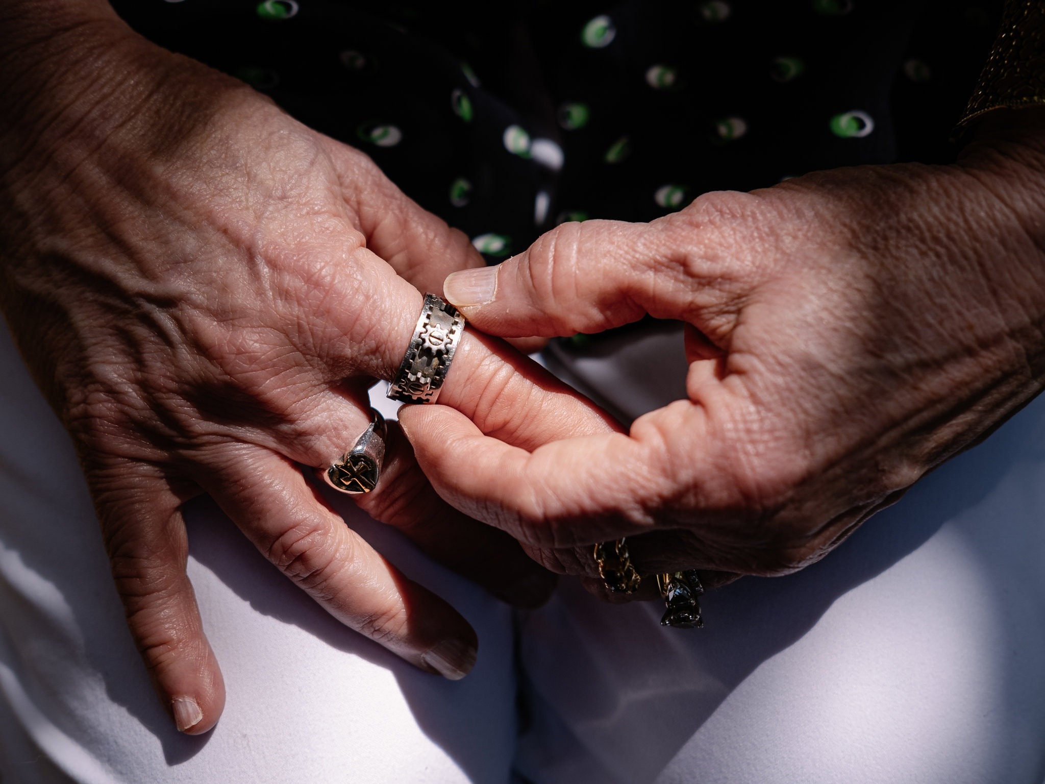 Fighting the Shame of Skin Picking, The New York Times - (Photo: Christopher Lee)