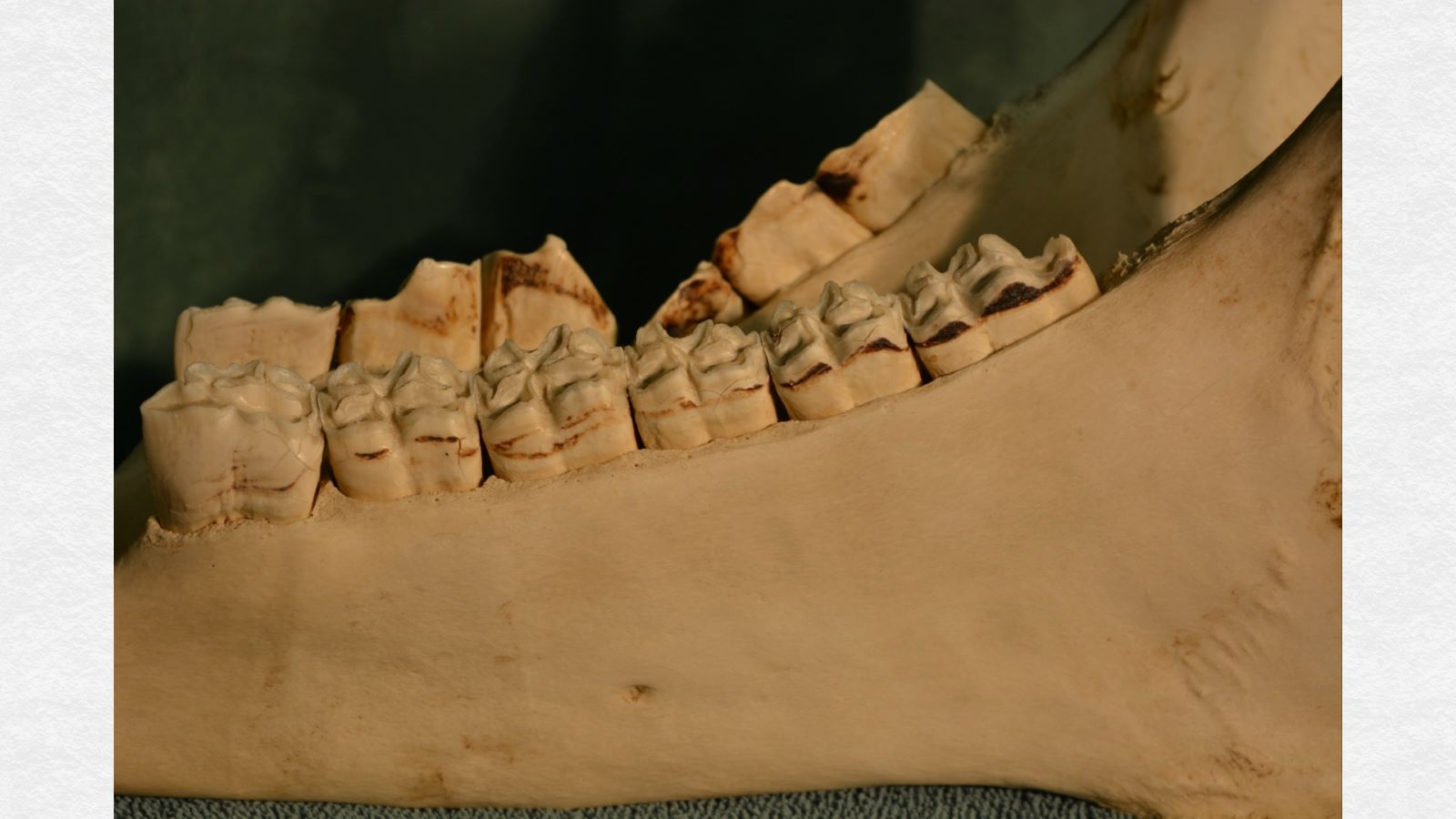 Compare the findings above with the smooth, level contour of the bone of the unaffected side (foreground).