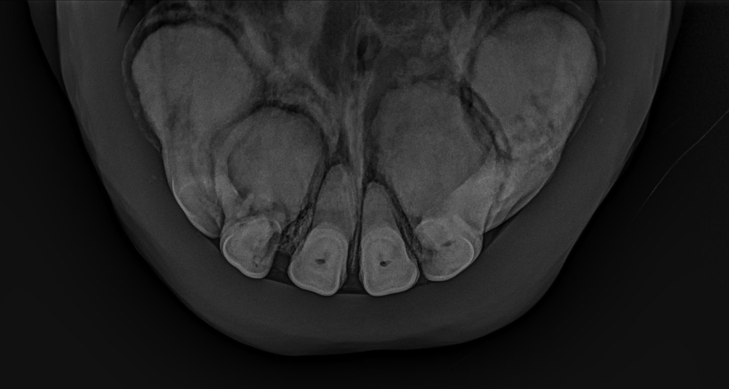 A clinical case of EOTRH in a gelding in his mid twenties.  Note the irregular and bulbous appearance of the roots, especially the outside incisors with less involvement of the middle incisors.  The bone surrounding the roots also looks irregular.