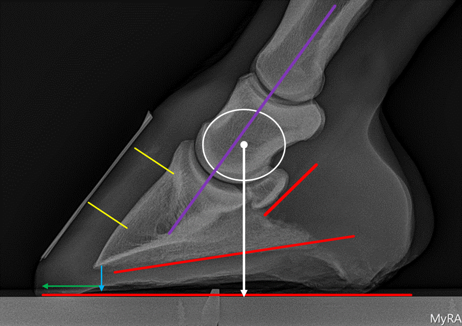 In the above image, there are a number of markers that identify the important biomechanical parameters that are considered when a radiograph of the foot is evaluated.  The white marker is the center of articulation of the coffin joint inside the foot.  Correlating this key point with landmarks on the outside of the foot is incredibly important for optimal shoe placement.  The red markers illustrate the palmar angle and the tendon surface angle, both of which can be altered if needed with appropriate shoe selection and placement.  A zero degree or negative palmar angle is of significant concern.  The yellow lines measure the horn-lamellar zone and are of importance in cases of laminitis.  The digital breakover and the sole depth are indicated by the green and blue lines, respectively, and the purple line illustrates the digital alignment.