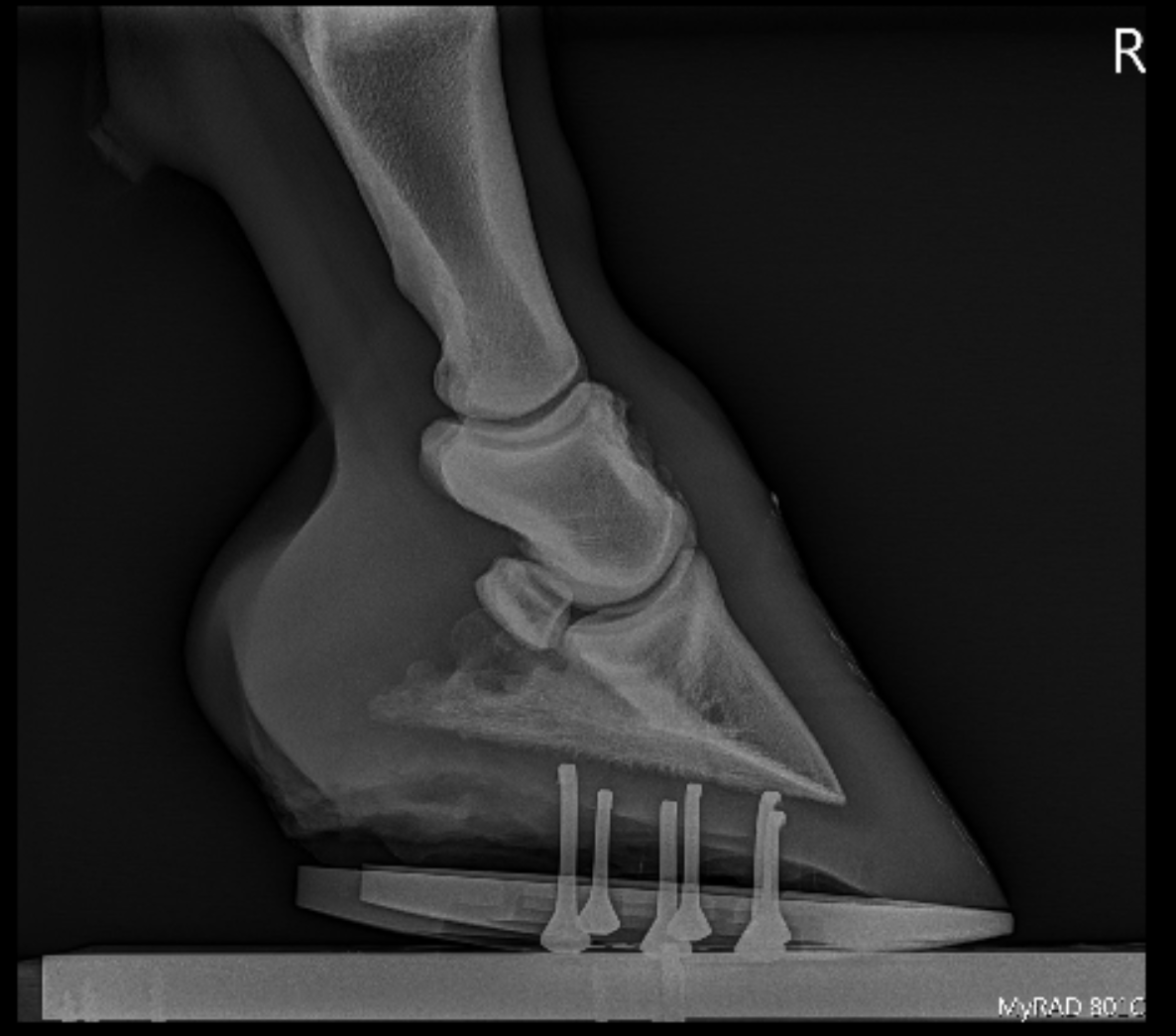 The horse in the above image was shod in a full rocker motion shoe to help both his caudal heel pain and his ringbone. He improved from a grade 3/5 lameness to a grade 1/5.