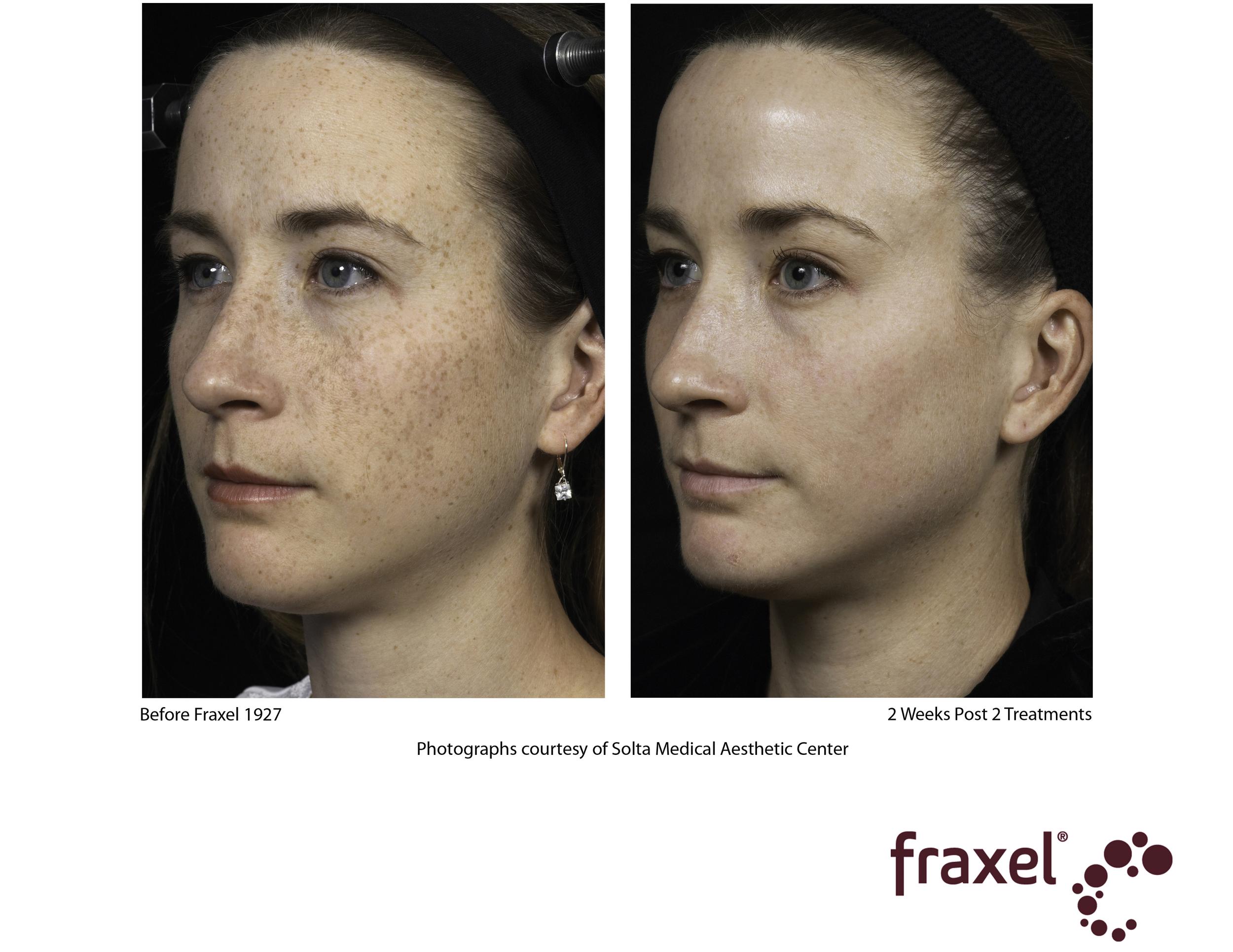 Fraxel face 5.jpg