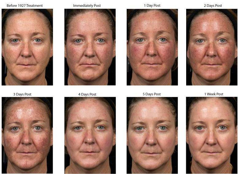 Photographs courtesy of Solta Medical Aesthetic Centre