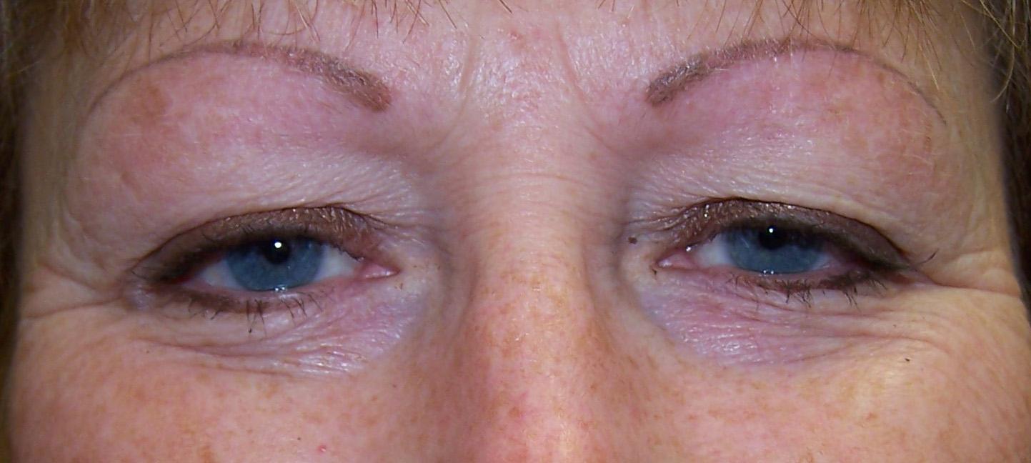 brows 12 after her procedure.jpg