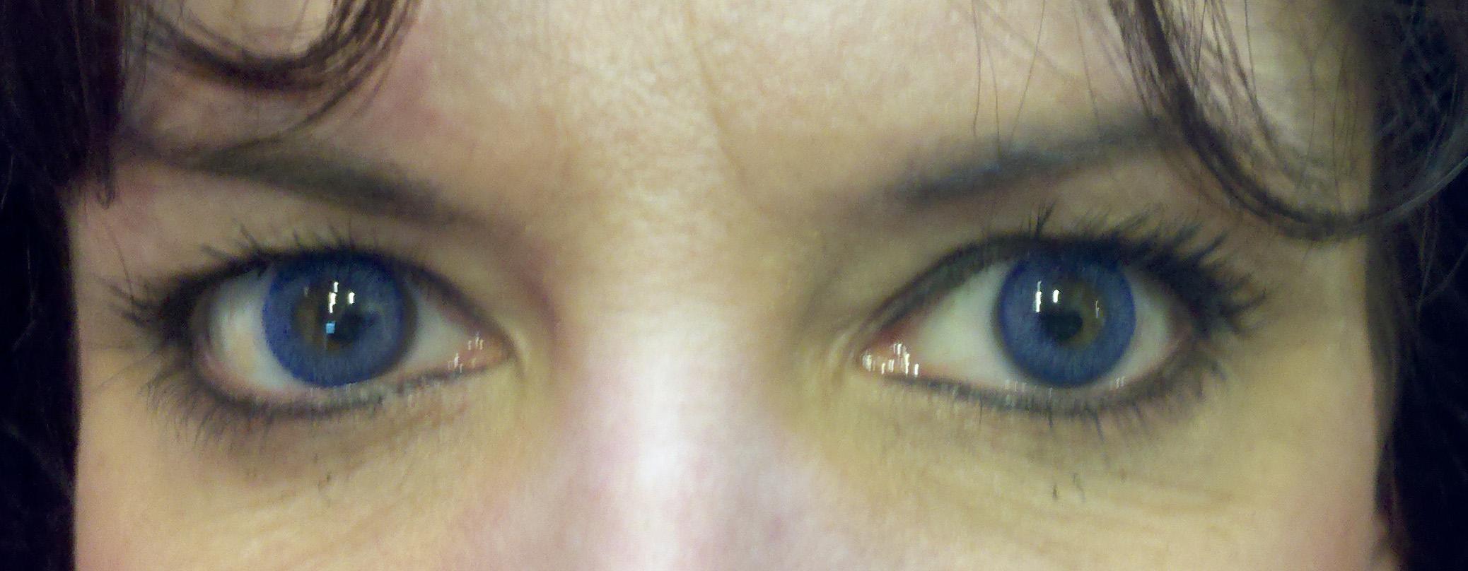 brows 30 healed.jpg