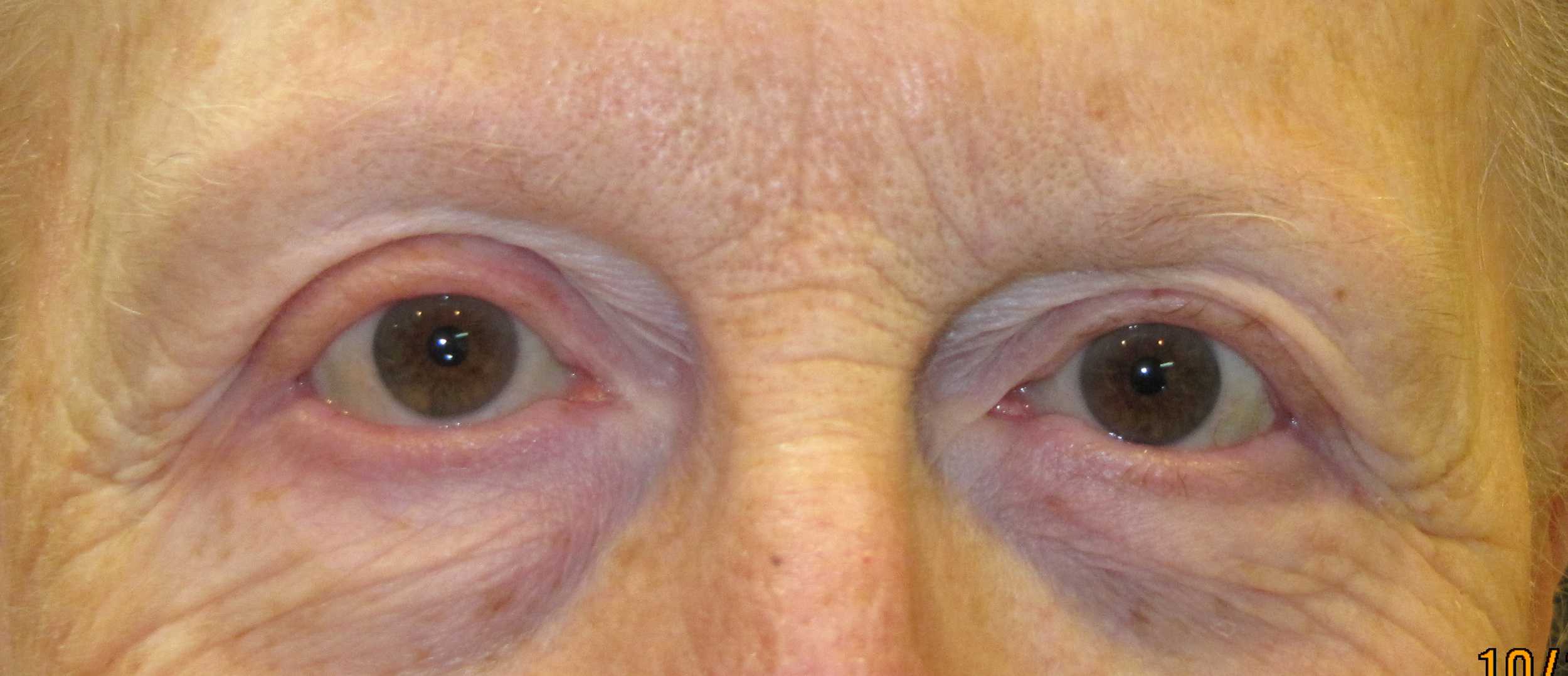 brows 31.jpg