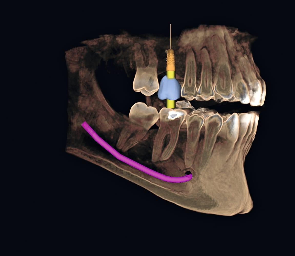 Sirona_Roentgen_ORTHOPHOS_XG_3D_Aufnahme_3D_Vol._Implantat_CEREC_Krone.jpg