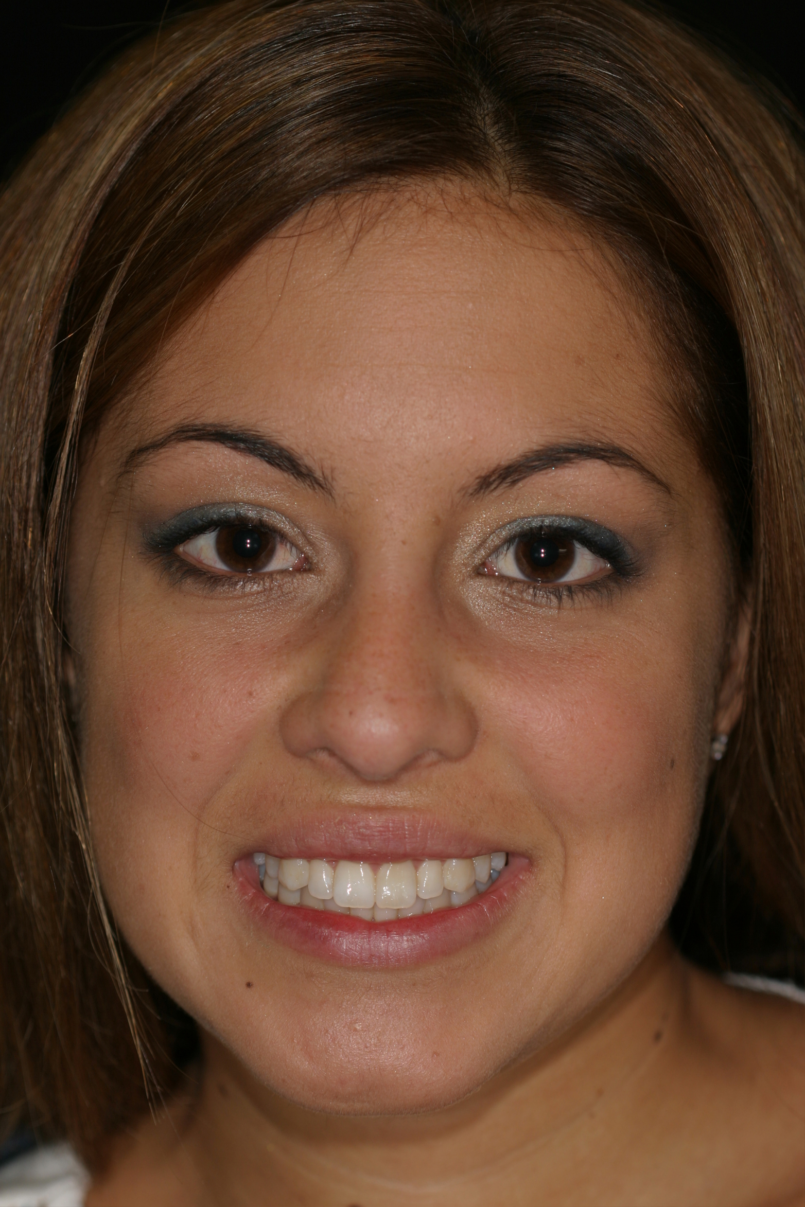 before ivory dental teeth whitening