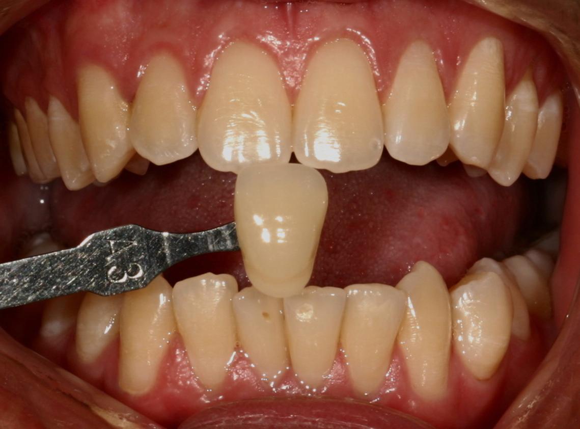 golden valley teeth whitening 1