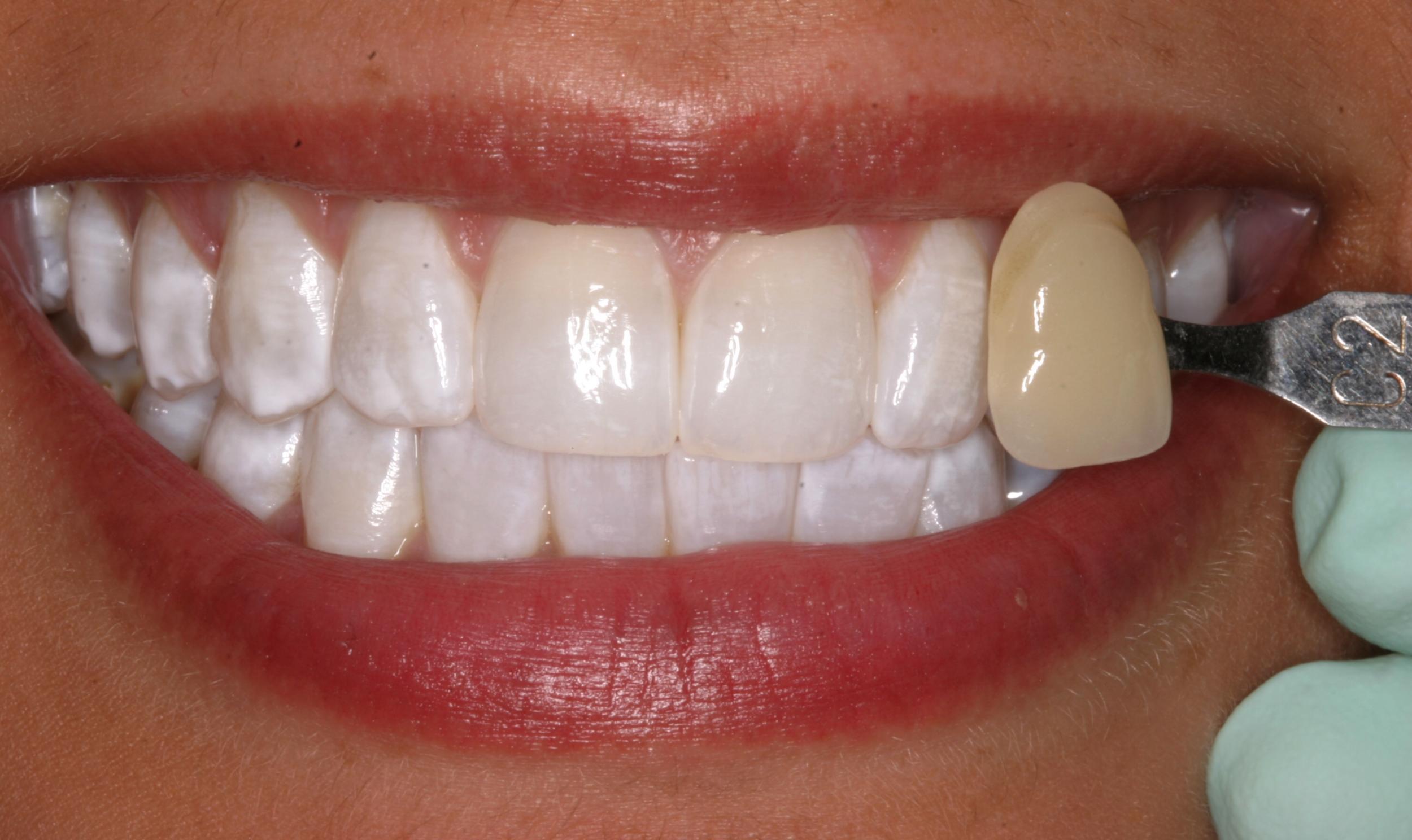 Minneapolis Teeth Whitening Dentist Ivory Dental Group