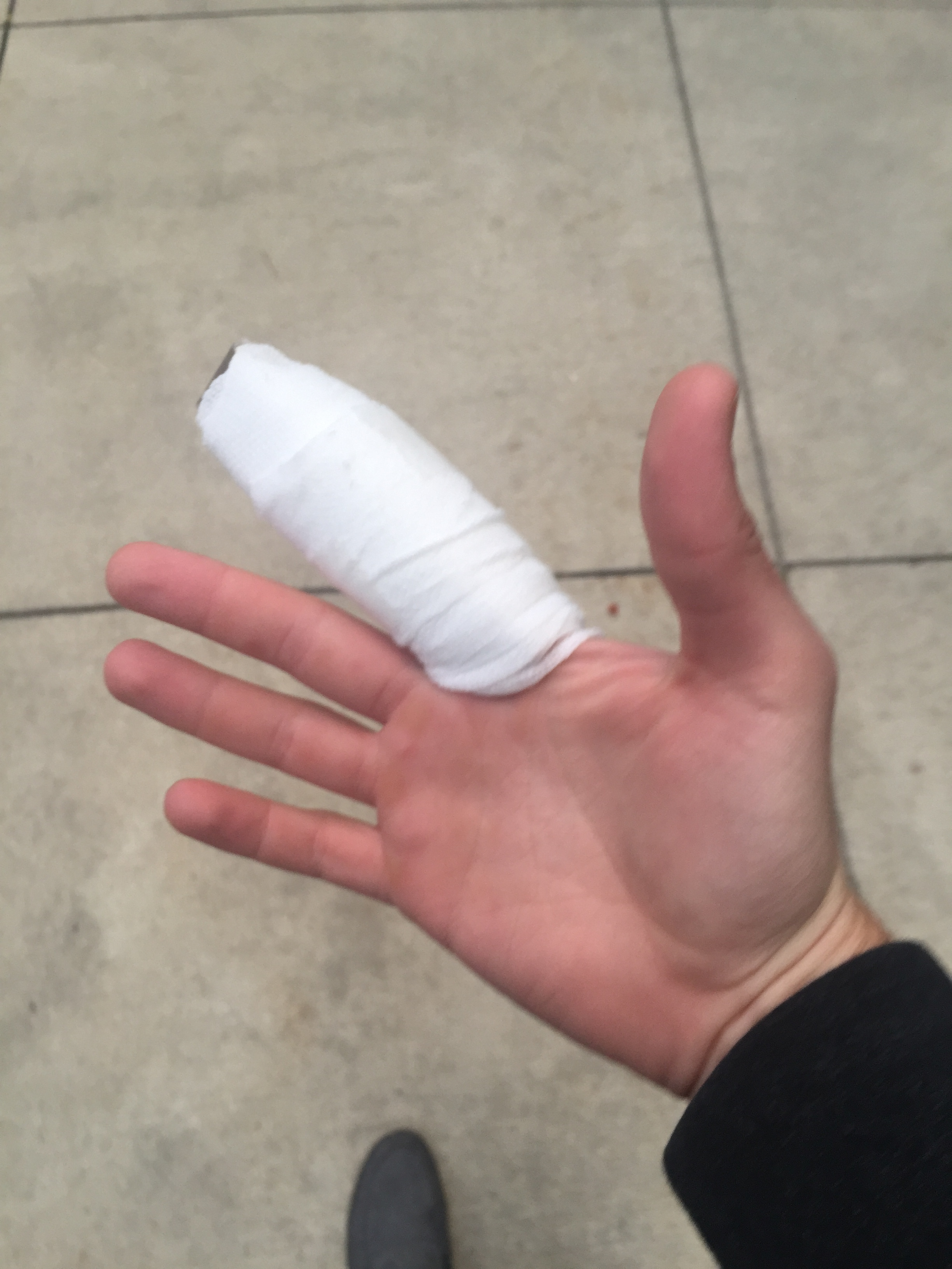 Broken finger, broken dreams