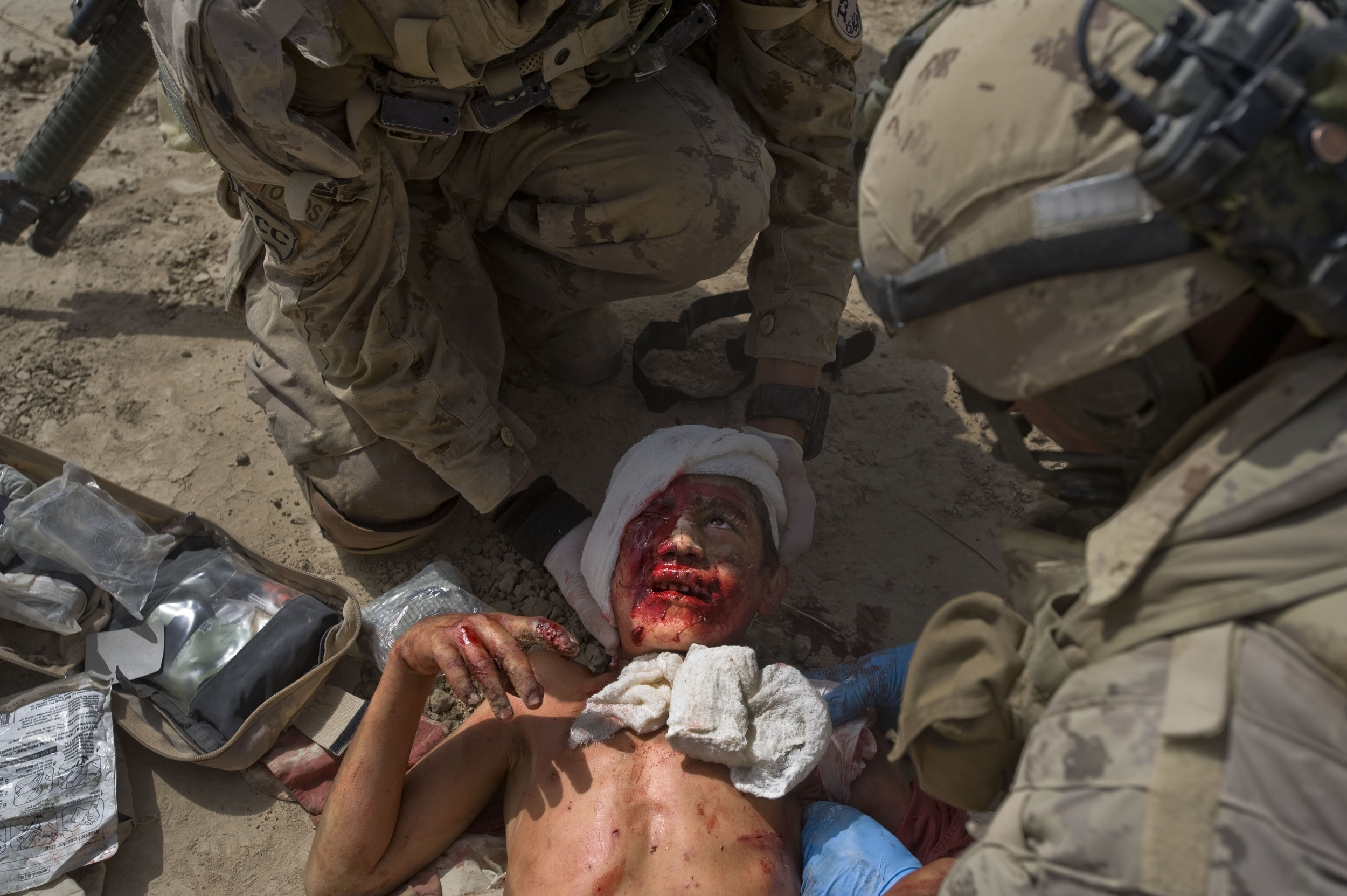 Canadian soldiers give first aid to a critically wounded 8-year-old Afghan boy after he was critically injured by an Improvised Explosive Device (IED) set by Taliban insurgents looking to target Canadian troops on patrol in the village of Fathullah in Panjwa'i District, Kandahar Province.Jul. 08, 2010 ©Louie Palu/Alexia Foundation/ZUMAPRESS.com