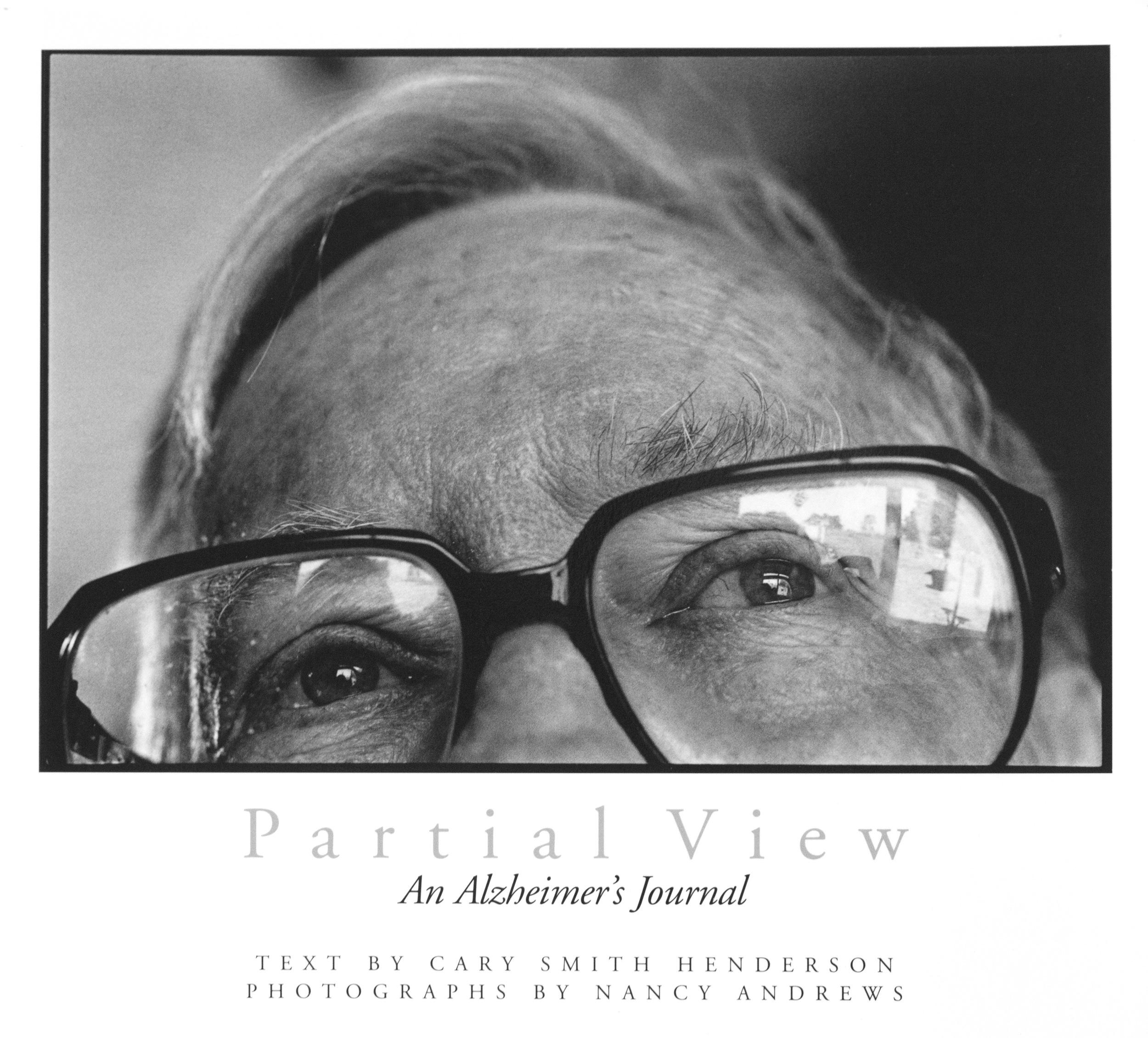 Partial View: An Alzheimer's Journal