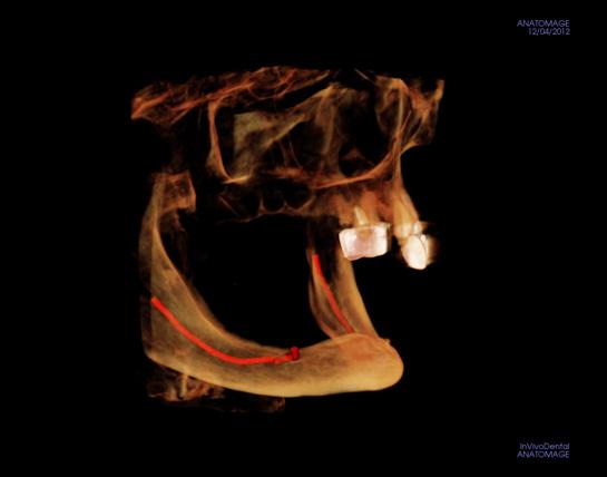 alex-nguyen-dds-deficient-bone-implantview1_2.jpg